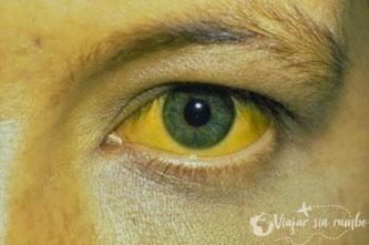 vacuna fiebre amarilla
